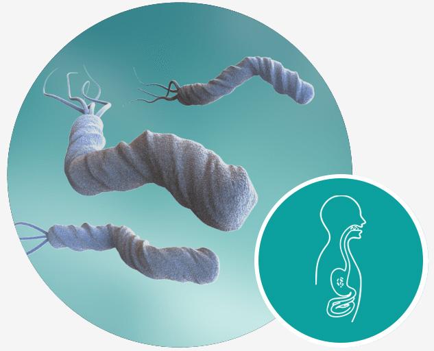 belano medical produkte magen helibacter pylori